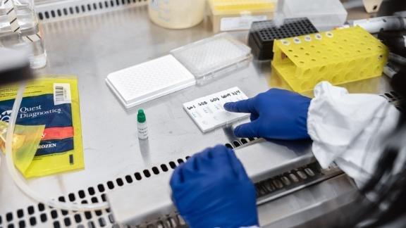 200424155140-01-covid-antibody-test-live-video-10